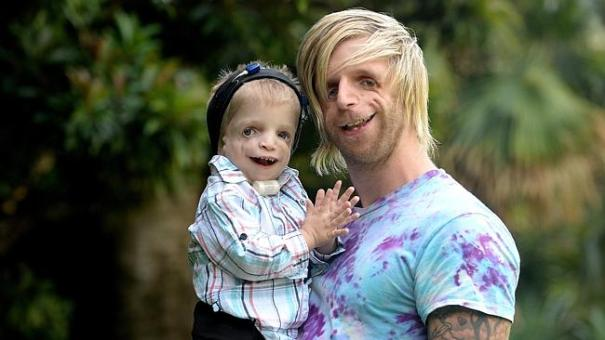 Zackary Walton and Jono Lancaster - Treacher Collins Syndrome